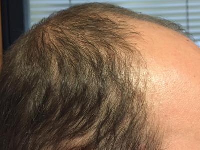Scoperta la cellula che fa cadere e ingrigire i capelli. Stop calvizie